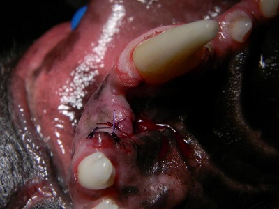 Figure 7. palatal view after treatment.