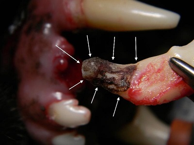 Figure 8. Tooth 203 after extraction, showing the the area of root resorption and calculus deposition on the root.