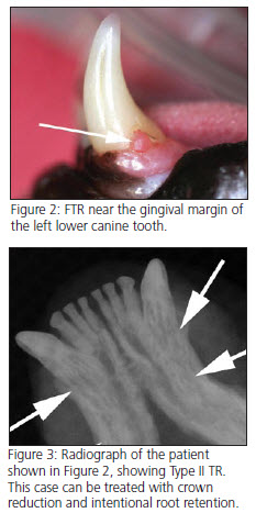 placement of labially (laterally) curved composite tip extensions on the lower primary canine teeth