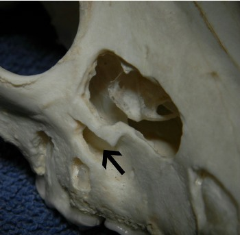 Figure 3. Same specimen as above, showing the nasal passages and maxillary recess lying medial to the palatal root of the upper fourth premolar. The infraorbital canal is indicated by the arrow.