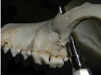 Figure 4. A sharp dental instrument can easily slip off the distal molars (#209 and #210) and damage the globe or other orbital structures.