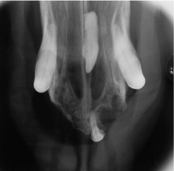 Figure 7. A dorsal view of the same patient as in figure 6. Utilizing both views will help localize the location of the tooth for treatment planning.