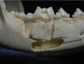 Figure 8. Right mandible showing the close association of the premolars and first molar (#409) with the mandibular canal and the neurovascular bundle contained therein.