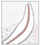 Figure 1. Diagram of an ucomplicated pet tooth crown fracture.