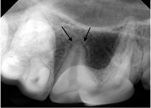 Normal Appearance of Periodontal Ligament Space in Dog