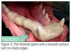 Segmental Mandibulectomy
