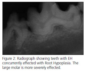Enamel Hypocalcification x-ray