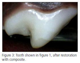 Enamel Hypocalcification after Vet Dental Treatment