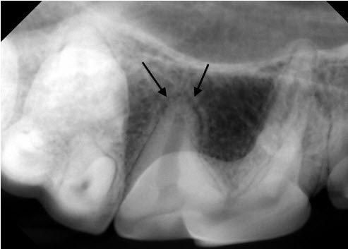 Dental X-ray of normal pet periodontal ligament
