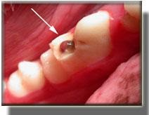 complicated dog tooth fracture with pulp exposure