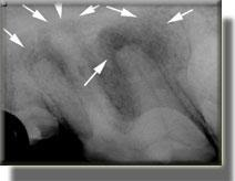 radiograph of damage to dog tooth from infection